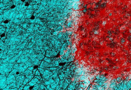 Photo Credit Sofia Grade Embryonic neurons (shown in red) transplanted into the adult mouse brain connect with host neurons (shown in black), rebuilding neural circuits previously lost due to an injury.