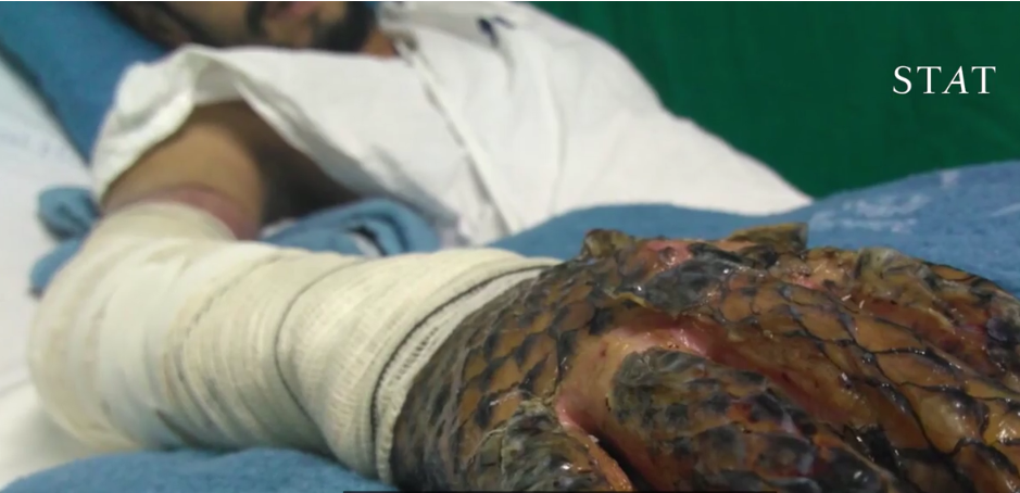 Can tilapia skin be used to bandage burns americans for for Fish skin for burns